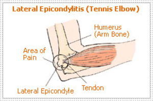 Lateral Epicondylitis (Tennis Elbow) - Dr Shreedhar Archik